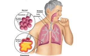 Obat TBC Paru
